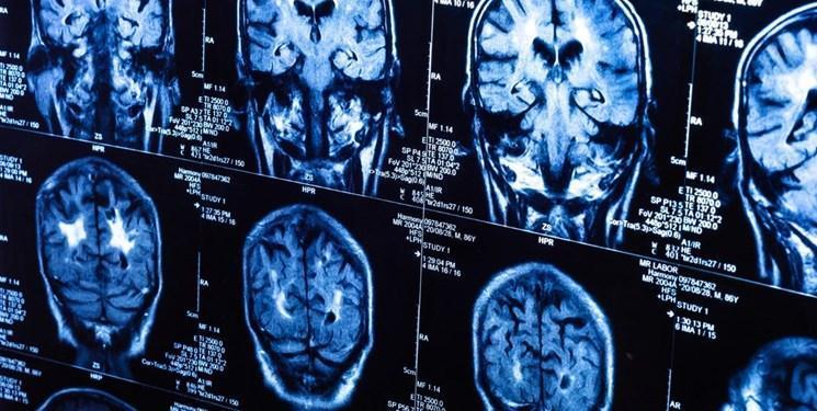 کشف عامل جدید بیماری پارکینسون با همکاری محقق ایرانی