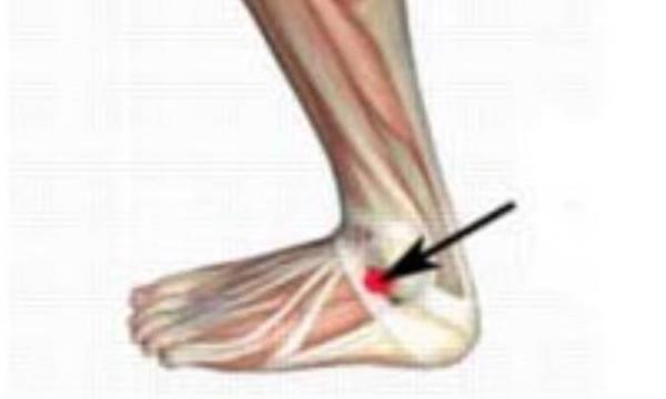 دلیل درد جلوی ساق پا چیست؟